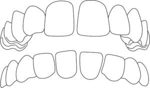 Gapped Teeth